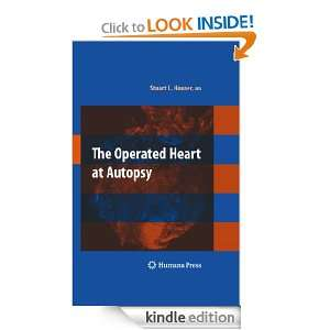 The Operated Heart at Autopsy: Stuart Lair Houser:  Kindle